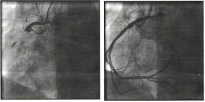 The difference between my 99% blocked right coronary artery and what it looked like after the clot was removed.